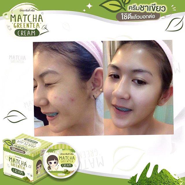 ครีมชาเขียวมัทฉะ Matcha Greentea cream