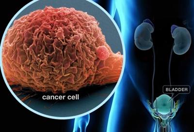 เจียวกู่หลาน รักษามะเร็ง