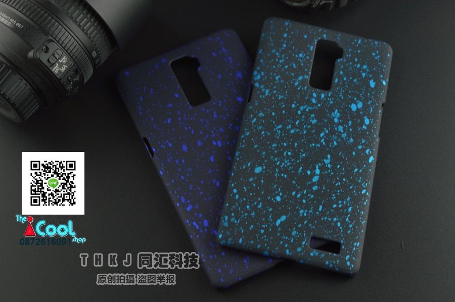 เคส OPPO R7 Plus - Star Hard Case [Pre-Order]
